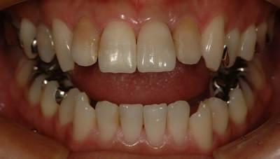 前歯のインプラント症例 男性after