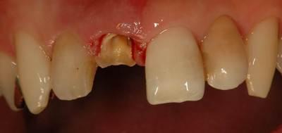 前歯のインプラント症例 男性before